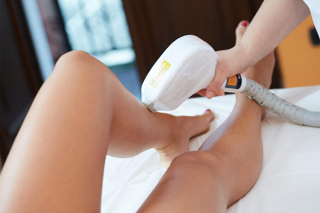 CoolGlide® Laser Hair Removal